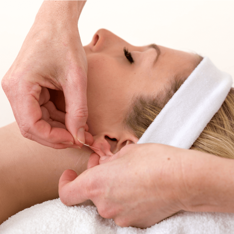 Ear Acupuncture | Anchor The Sole